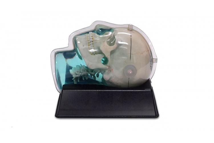 603GS CT_MRI頭部歪み評価ファントム